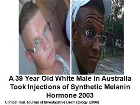White Man Turns Black With Melanin Injections